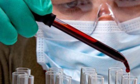VIH, SIDA, células madre