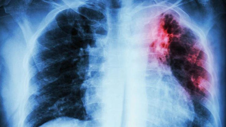 San Diego, salud, endermedades, tuberculosis