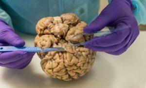 salud internacional, medicina neurológica, neurociencia, avance teconológico, ciencia, internacional