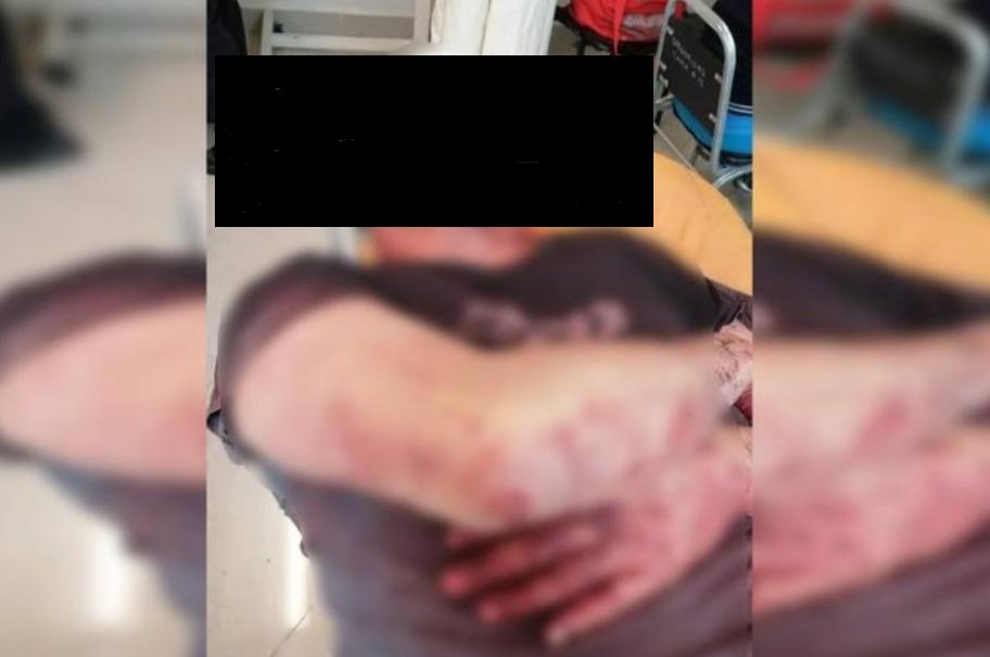 enfermero, IMSS, Torreón, agresión, violencia, salud, golpes