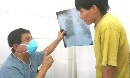 tratamientos médicos, Pacientes, tuberculosis,