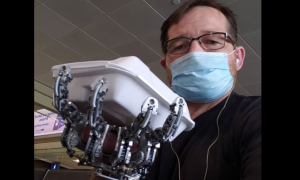 Ciencia, tecnología, fabricación, prótesis, mano, video viral